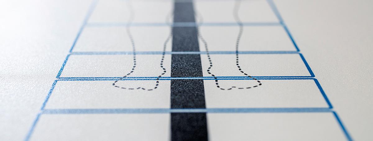 Veredelung von Oberflächen in Kunststofftechnik